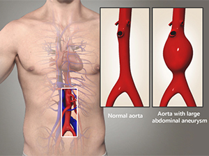 Abdominal Aortic Aneurysm Endovascular Repair