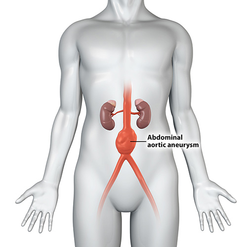 Abdominal Aortic Aneurysm Treatment Sydney | Thoracic Aorta (TAA) Sydney