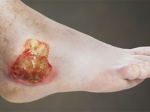 Chronic / Non-healing Wound Management