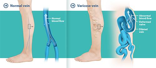 varicose veins male genital area