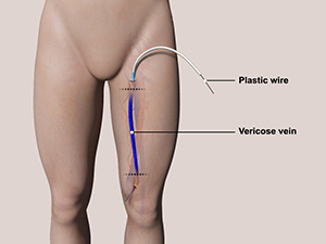 removal of varicose veins in legs